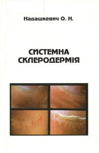 Система склеродермія