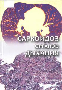 Саркоидоз органов дыхания