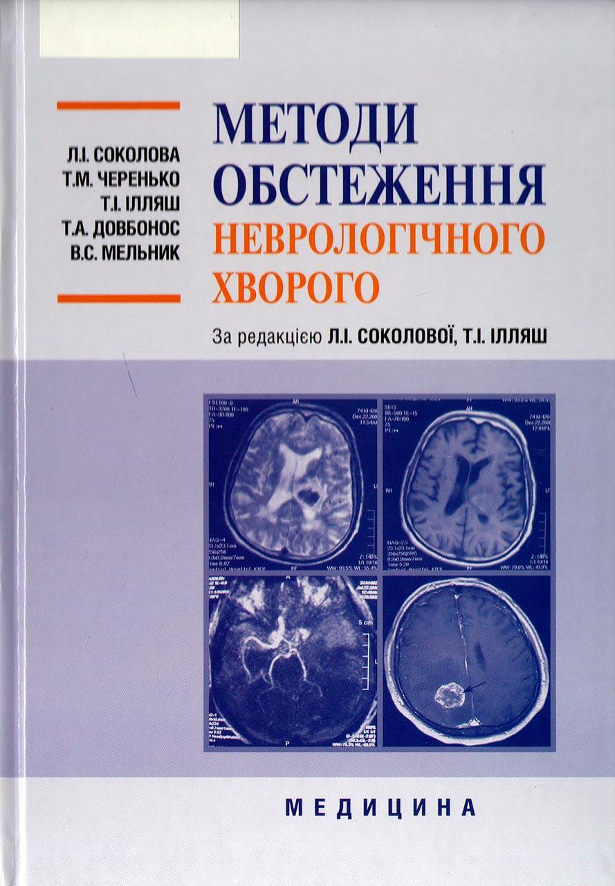 Методи обстеження неврологічного хворого