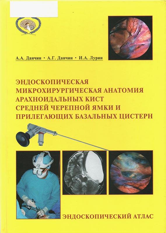 Эндоскопическая микрохирургическая анатомия арахноидальных кист средней черепной ямки и прилегающих базальных цистерн – эндоскопический атлас