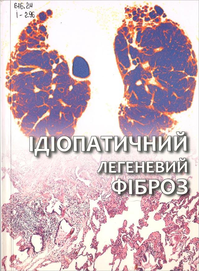 Ідіопатичний легеневий фіброз: клініка, діагностика, лікування