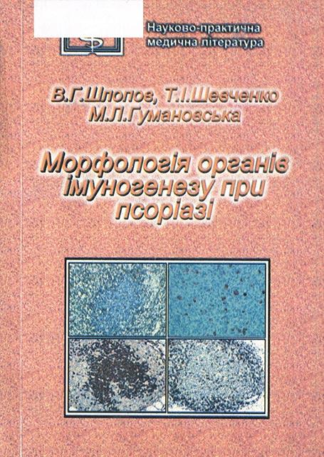 Морфологія органів імуногенезу при псоріазі