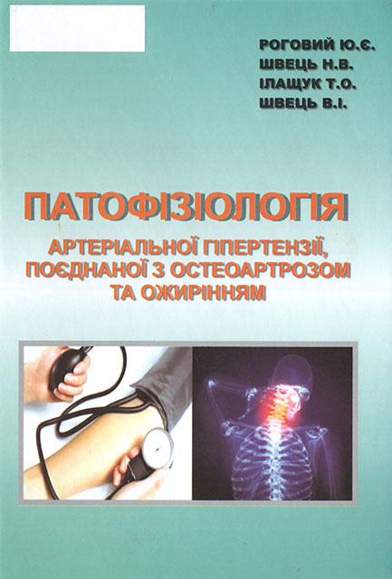 Патофізіологія артеріальної гіпертензії, поєднаної з остеоартрозом та ожирінням