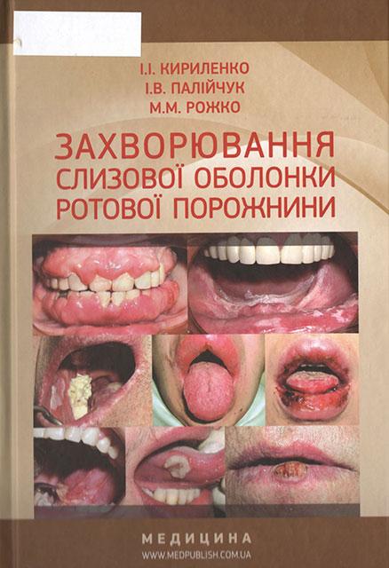 Захворювання слизової оболонки ротової порожнини