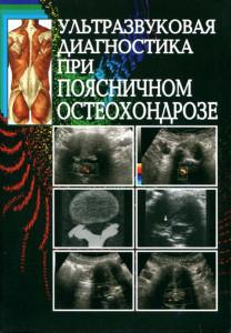 Ультразвуковая диагностика при поясничном остеохондрозе