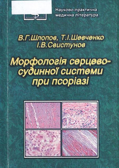 Морфологія серцево-судинної системи при псоріазі