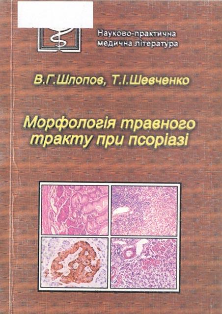 Морфологія травного тракту при псоріазі