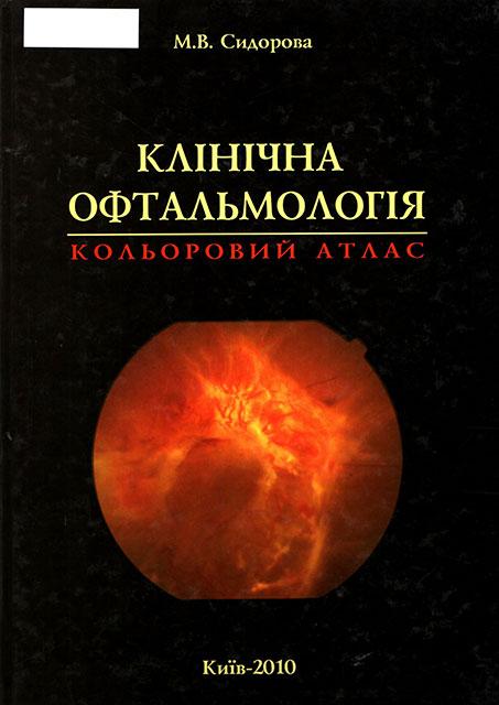 Клінічна офтальмологія : кольоровий атлас